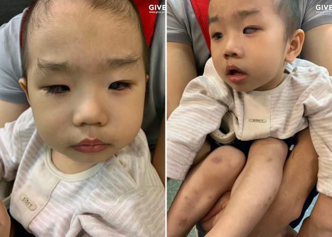 Hành trình tìm lại ánh sáng cho đứa bé đã hơn một lần bị bác sĩ từ chối chữa trị - Ảnh 3